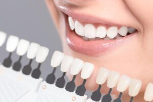 Cosmetic dentistry grant program